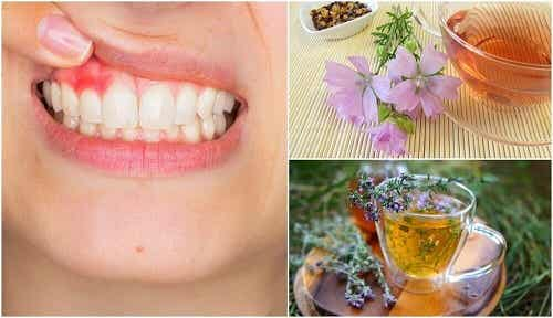 5 remedii naturiste pentru tratarea gingivitei
