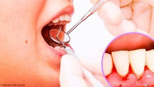 Remedii pentru infecțiile gingivale recomandate de dentist