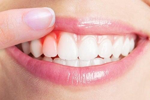 Cele mai bune 5 remedii pentru infecțiile gingivale
