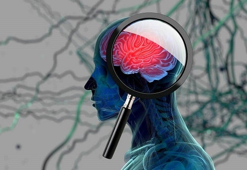 Semnele bolii Alzheimer precum pierderea memoriei