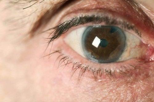 Tratamente naturiste pentru glaucom care ameliorează simptomele