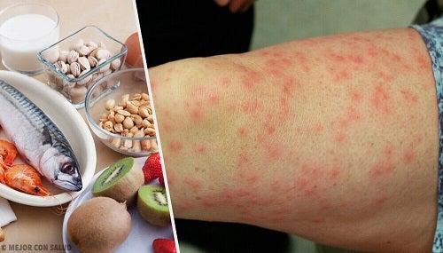 Cele mai frecvente alergii alimentare și cei mai buni înlocuitori
