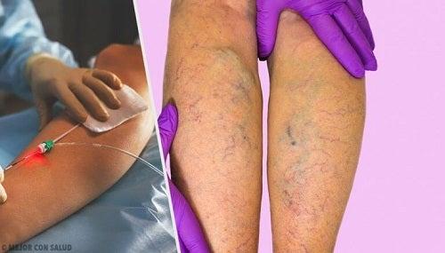 cum se manifestă venele varicoase într-un mic pelvis)