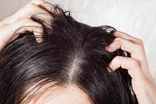 6 remedii naturale pentru micozele scalpului