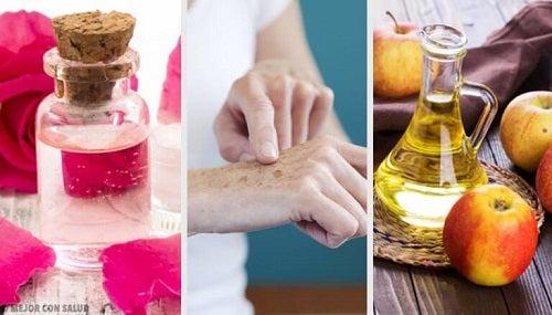 Petele maronii de pe mâini - 8 remedii naturale