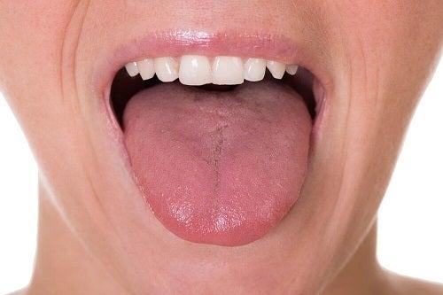 Semne care indică prezența plăcii în gât precum aspectul limbii
