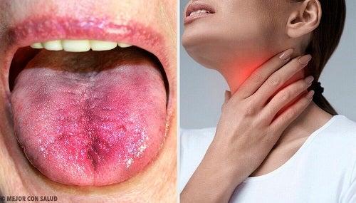 6 semne care indică prezența plăcii în gât