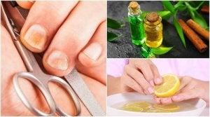 Remedii populare pentru vene varicoase și tromboflebite - Articole