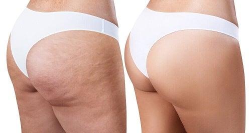 Uilizări și beneficii ale rozmarinului pentru piele