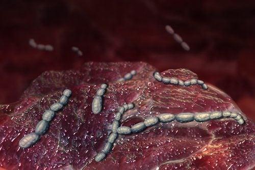 Cauzele și simptomele scarlatinei provocate de bacterii