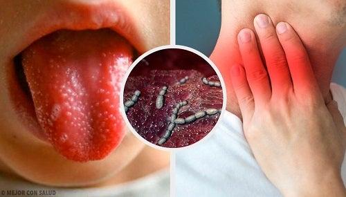 Cauzele și simptomele scarlatinei