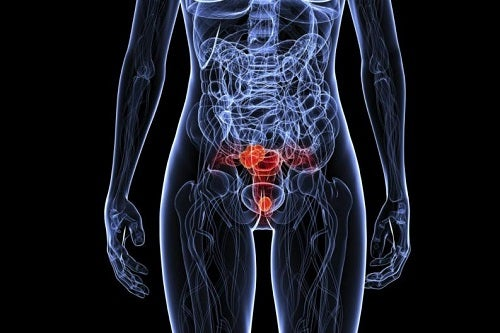 Ce este virusul papiloma uman care afectează organul genital