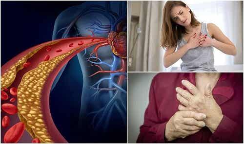 10 simptome ale nivelului crescut de colesterol