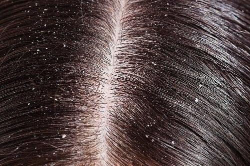 Rețete cu scorțișoară pentru păr fără mătreață