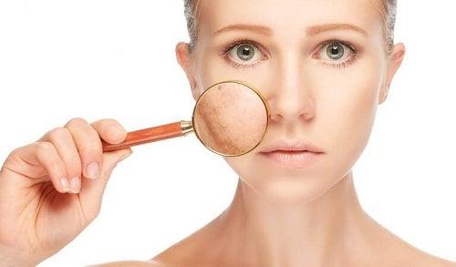 Semnale de alarmă vizibile pe față manifestate prin piele uscată