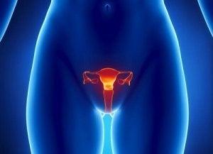 cancer ovarian primele simptome