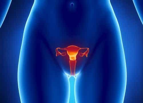 5 simptome timpurii ale cancerului ovarian