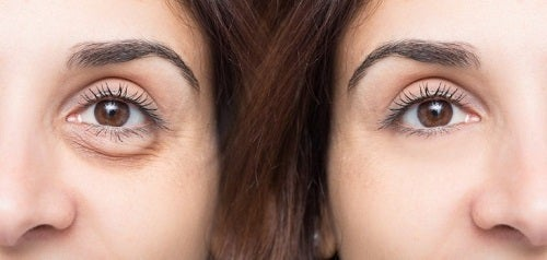 Trucuri pentru a părea mai tânără eliminând pungile de sub ochi