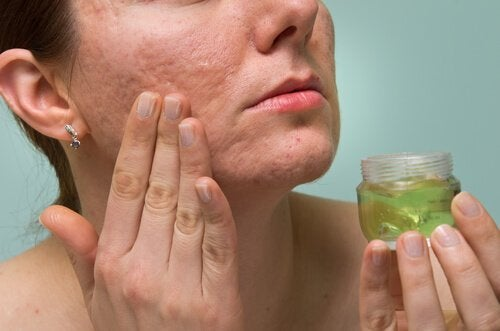 Beneficii ale gelului de aloe vera precum tratarea acneei