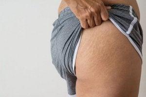 vergeturile se estompează după pierderea în greutate