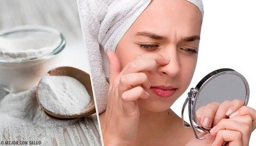 Remedii naturale cu bicarbonat pentru problemele pielii