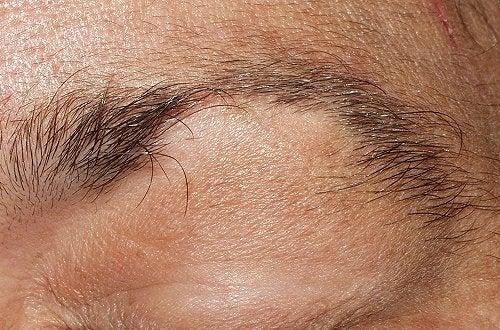 Semne care indică un posibil infarct precum căderea părului la femei