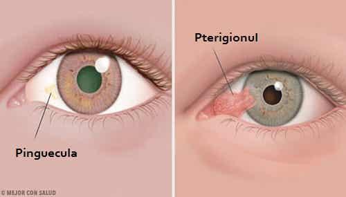 Simptomele unor boli oculare: pingueculă și pterigion