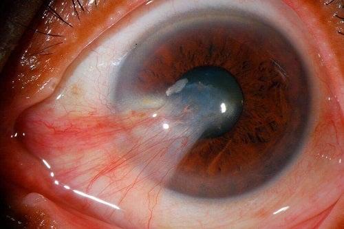 Simptomele unor boli oculare precum pinguecula