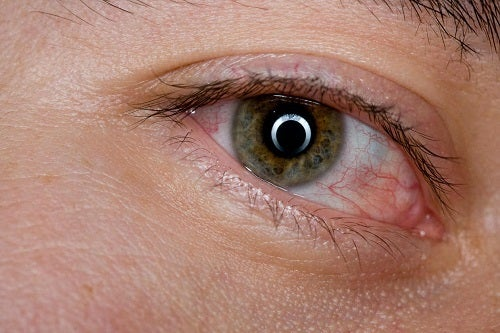Simptomele unor boli oculare precum pterigionul