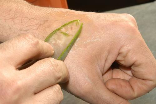 Vindecarea rănilor pe lista de beneficii ale gelului de aloe vera