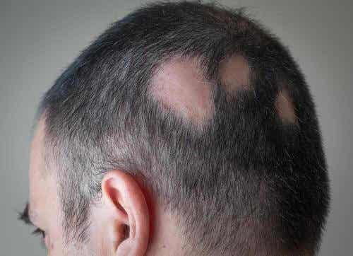 Cum să combați alopecia cu soluții naturiste