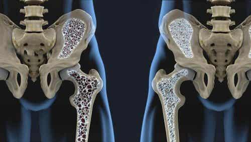 6 schimbări în dietă pentru prevenirea osteoporozei