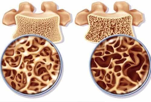 Remedii pentru prevenirea osteoporozei