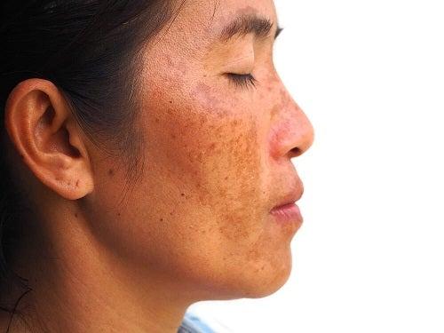 Remediu împotriva petelor pigmentare cu iaurt