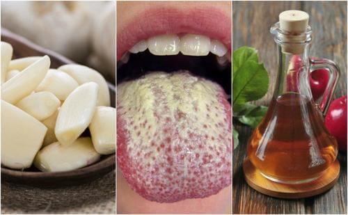 Apa de gură pentru tratarea candidozei bucale