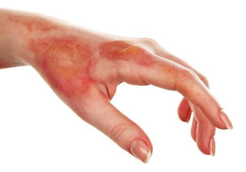 Remedii naturale pentru arsuri ale pielii