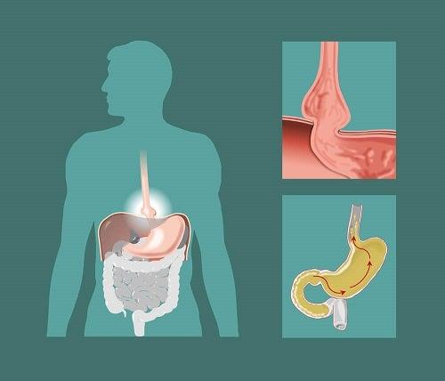 Henia hiatală este o afecțiune a sistemului digestiv