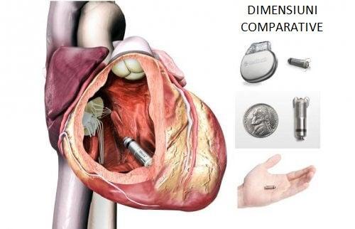 Stimulatoul cardiac Micra are mărimea unei monede de 1 euro