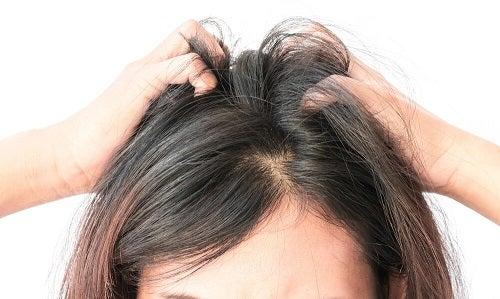 Remedii împotriva mâncărimii scalpului