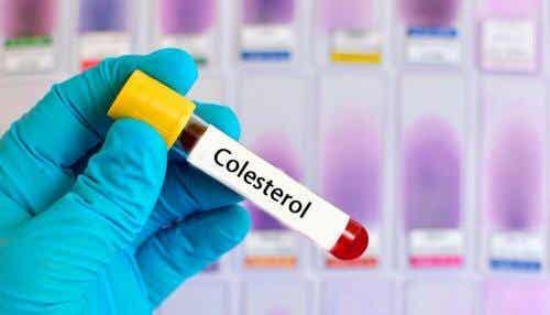 Remedii din plante pentru colesterol mărit