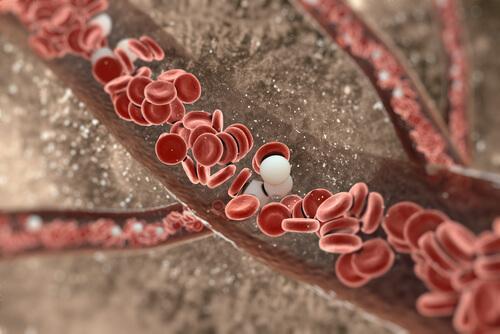 Artere înfundate cu depuneri