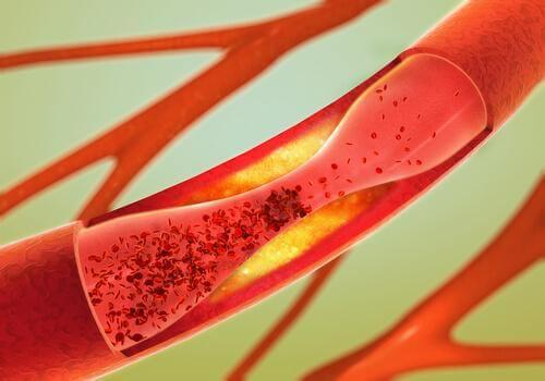 Artere înfundate
