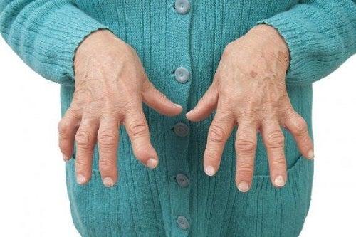 Remedii naturale pentru artrita reumatoidă