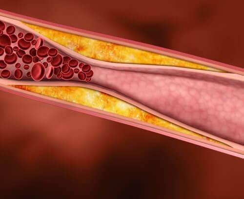 Colesterol în artere