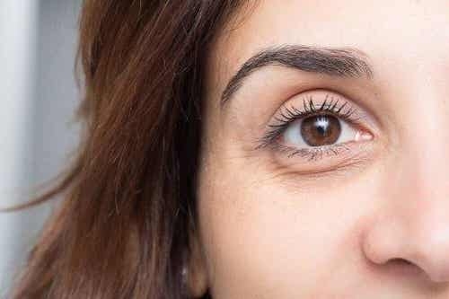 Cum să previi pungile sub ochi și cearcănele