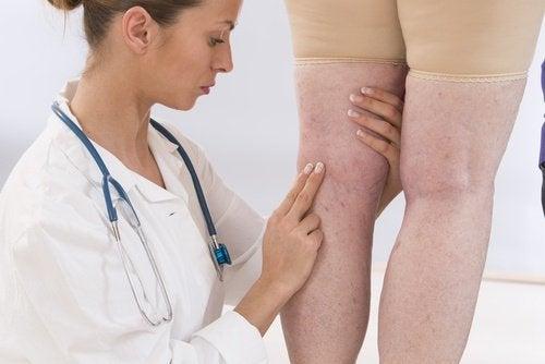 Medic examinând picioarele unei femei