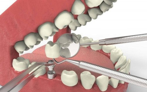 Tratamente pentru agenezia dentară prin implanturi
