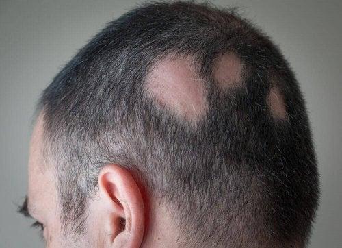 Bărbat care are nevoie de un tratament natural pentru alopecie