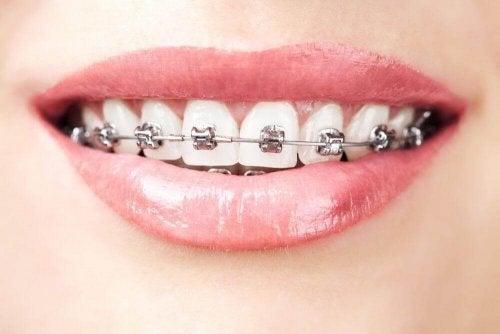Dinți cu aparat dentar