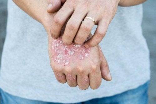 5 tratamente din plante pentru psoriazis